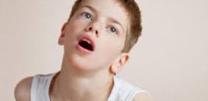 child with dystonic reaction